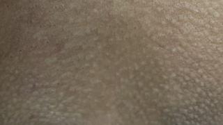 VIO Skin